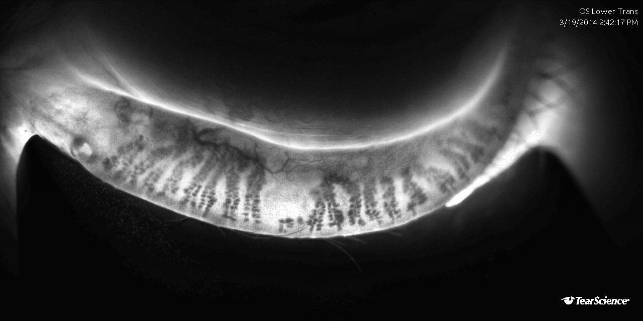 Meibomian Gland imaging